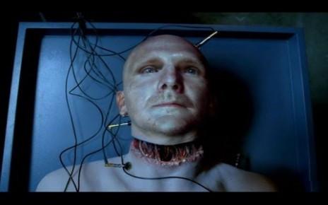 Erste Kopftransplantation